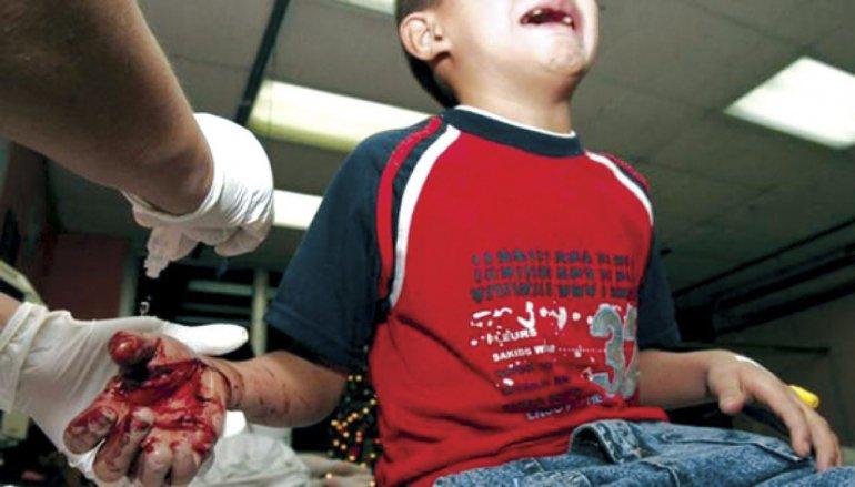 Al menos 67 menores y 90 adultos sufrieron quemaduras o lesiones por mal uso de pirotecnia o impacto de corchos