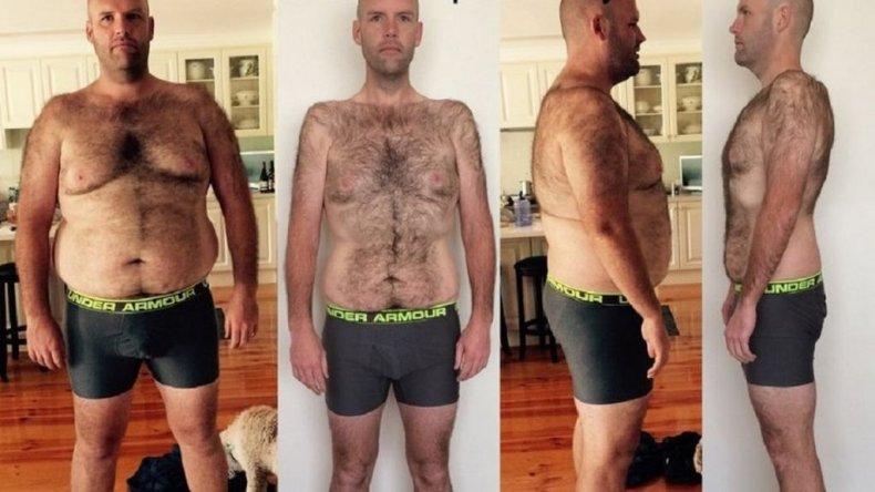 Bajó 50 kilos comiendo solo papas durante nueve meses