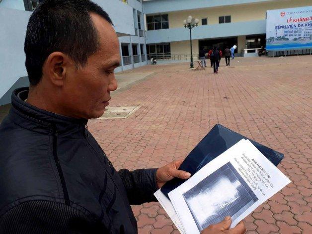 Ma Van Nhat. El hombre que vivió 18 años con tijeras en el estómago.