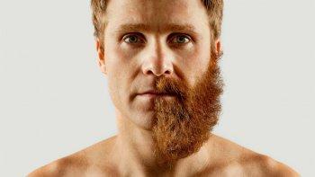 implante de barba, la medicina de la moda