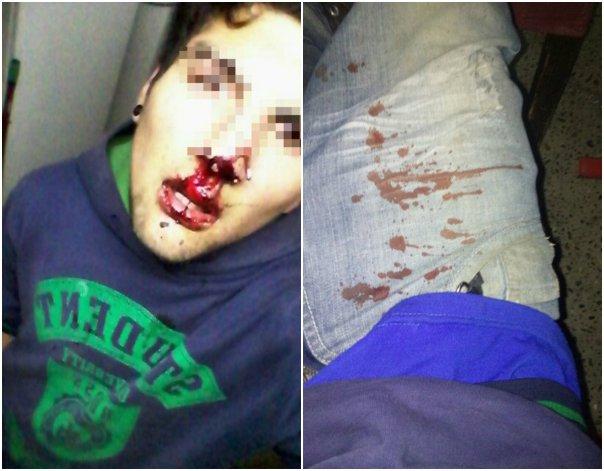 En una garita robó un celular pero le dieron un paliza arriba del colectivo