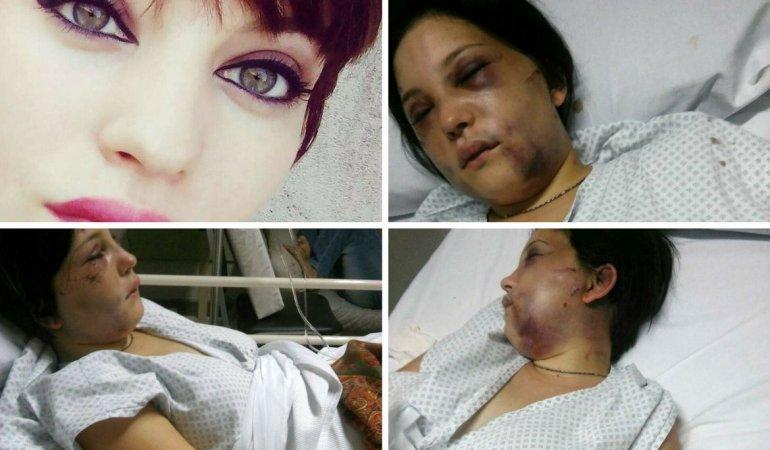 Belén sufrió una perforación del tímpano, huesos oculares rotos y fisuras