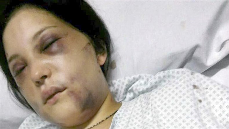Belén Torres declaró ante el juez y comprometió al anestesista que la golpeó.