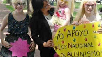 argentina podria convertirse en el primer pais en proteger los derechos de los albinos