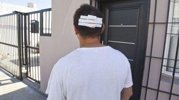 La víctima muestra las lesiones que le provocaron los asaltantes. Le llevaron 15 mil pesos de una recaudación de la empresa para la que trabaja.