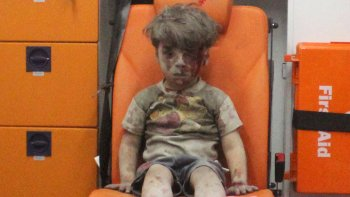 Sigue el calvario del niño sirio cuya imagen retrató el horror de la guerra