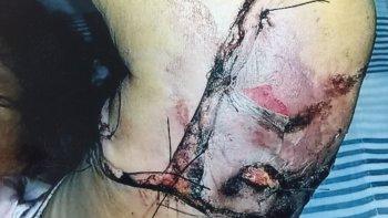 cuestionan a fiscalia por la calificacion del caso de la mujer mordida por un rottweiler