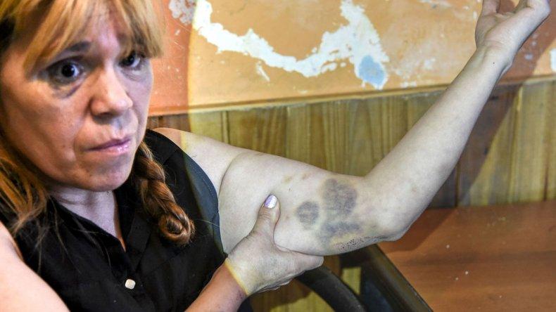 Laura Vargas denuncia que sufrió una violenta golpiza por parte de policías de la Seccional Segunda que le arrebataron el teléfono con el que grabó una agresión.