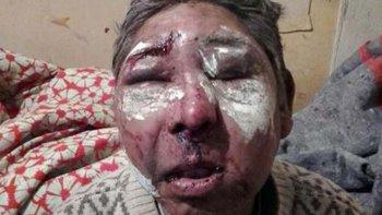 El rostro de Chipama Mariaca fue desfigurado por sus compañeros de alcohol.