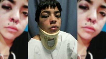 una joven denuncio que la golpearon e intentaron violarla en bahia blanca