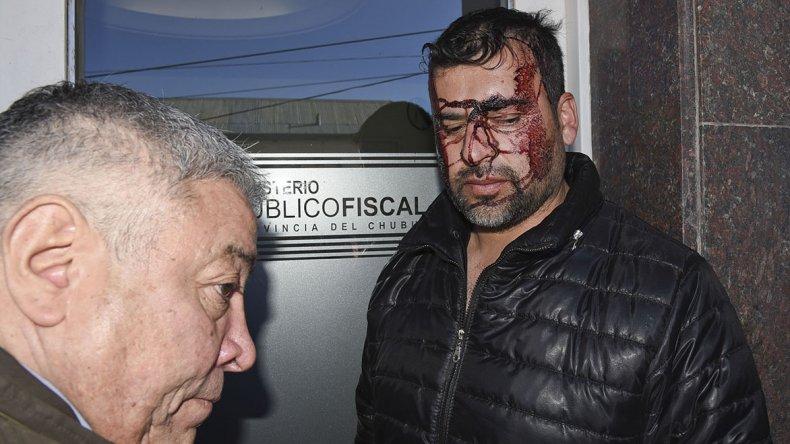 El delegado de la UOCRA exhibía en su rostro las huellas del allanamiento policial en su vivienda.